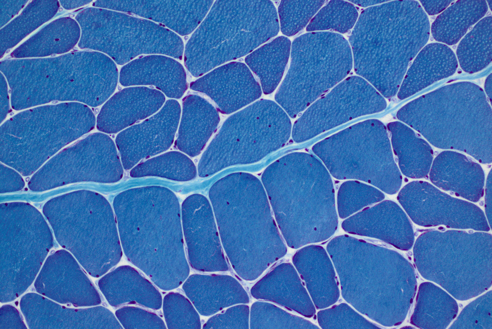 Stained muscle section of a DM1 patient
